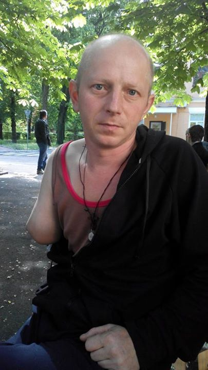 "Andrew Sharayenko, 40 years old, from Bila Tserkva. Voluntarily mobilized in February of this year. He served in the 17th Territorial Defense Battalion ""Kirovograd"" in Horlivka. On April 17, during a battle he received a serious wound in his right hand and in Dzerzhinsk it was amputated. He was then transferred to Kharkiv and then to the Kyiv military hospital, where he is now. He still has to undergo rehabilitation and obtain expensive prosthetics. Source"